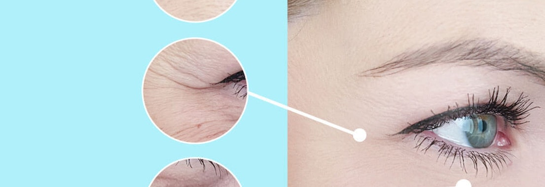 Fewer Wrinkles: It's Possible with Skin Therapies from Your Dermatologist