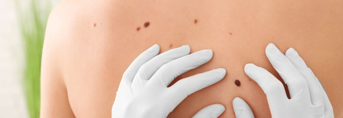 What are the Common Signs and Symptoms of Skin Cancer?