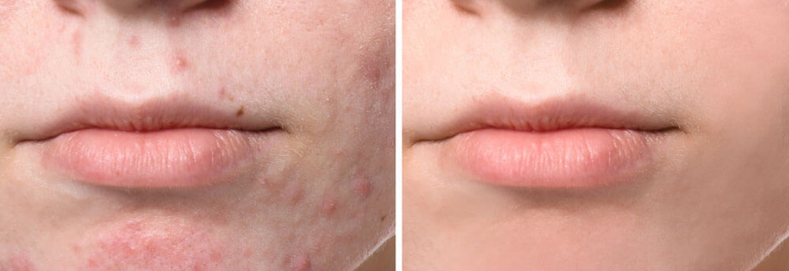 Want Acne Gone Without Scarring? Your Dermatologist Can Help