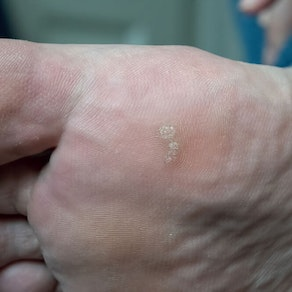 What Causes Warts and How to Treat Them