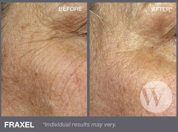 Close up of a woman's cheeks before and after applying Fraxel