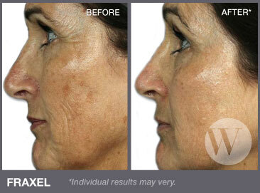 Close up of a woman's face before and after applying Fraxel