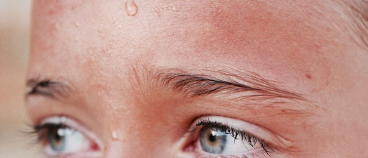 Do You Sweat Excessively? A Dermatologist Can Help