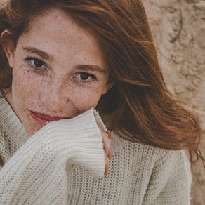 Pacific Dermatology Specialists skin freckles treatment Want to Remove Your Freckles? Cosmetic Treatments to Know
