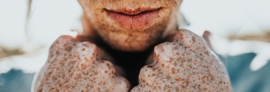 Can You Really Get Rid of Freckles?