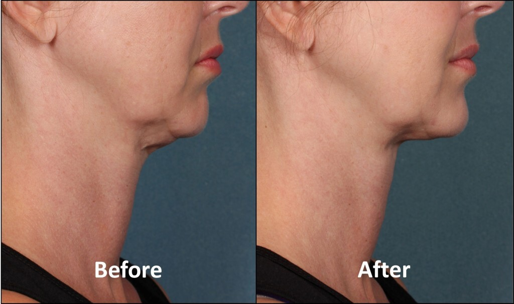 Woman's chin before and after
