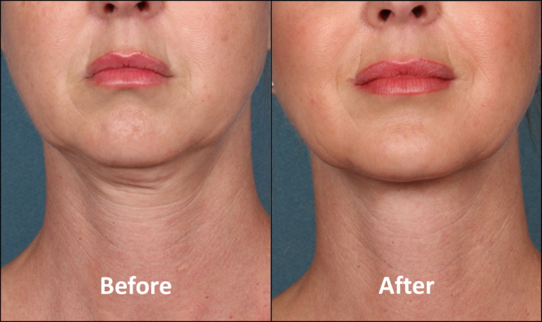 Close up of a woman's face before and after