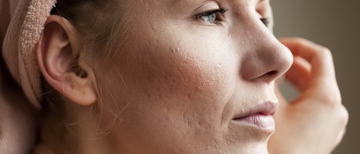 Woman treating her acne Adolescent Acne vs. Adult Acne