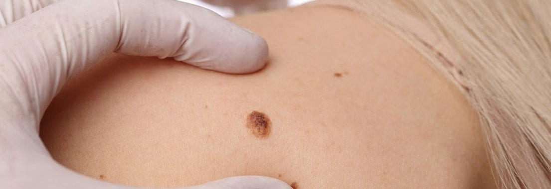 Dermatologist looking at a woman's mole Too Much Sun? Here's Why You Should Get a Mole Check