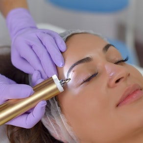Woman having mole removed by a dermatologist Why a Cosmetic Mole Removal Is Right for You