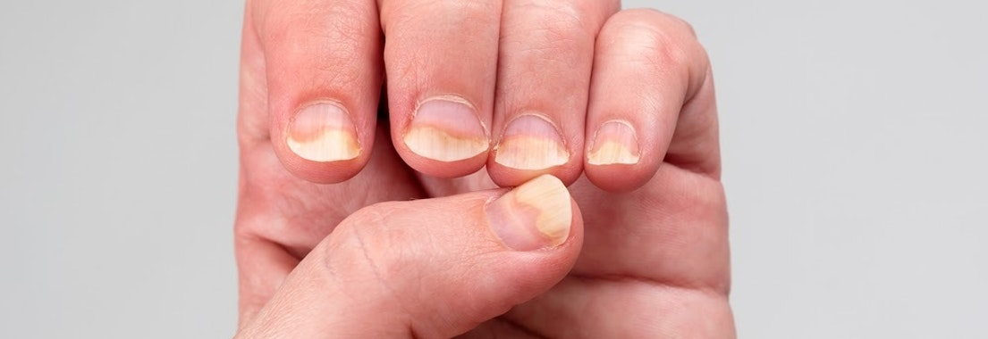 Person with infected finger nails What Is a Nail Infection and How Do I Cure It?