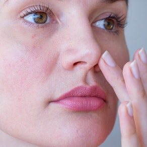 Woman applying treatment for facial acne Acne vs. Rosacea: How to Combat Both