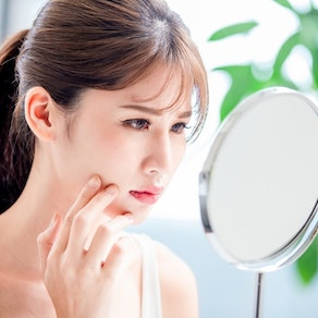How to Manage Acne During a Humid Summer