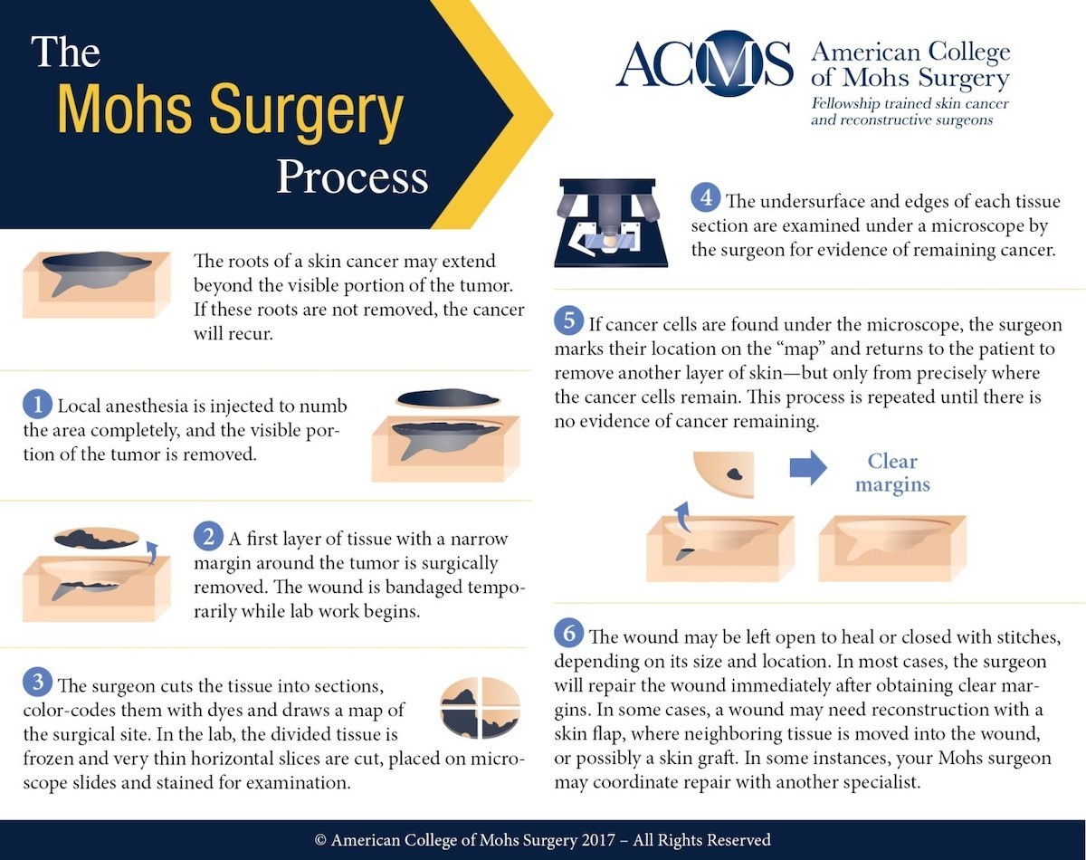 The Mohs Surgery Process