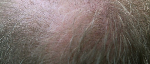 Understanding What Causes Alopecia and How to Treat It