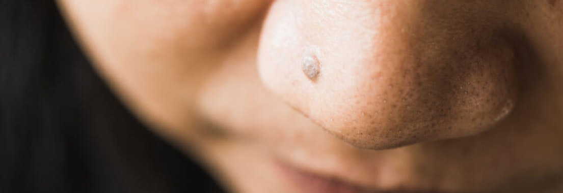 Woman's nose with a mole Surgical Dermatology: Are You a Good Candidate for Mohs Surgery?