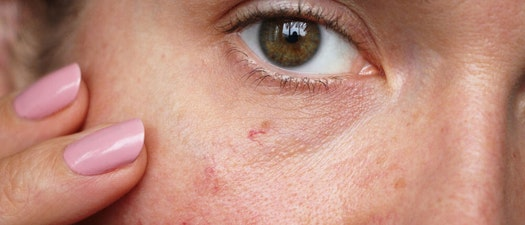 Woman with rosacea Skin Care Questions: Is This Rash Actually Rosacea?