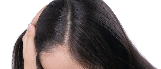 Woman feeling her scalp Mohs Surgery: Why You May Need Mohs on the Scalp