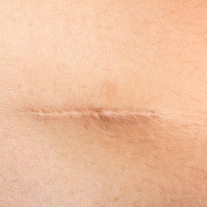 3 Ways to Lessen a Scar