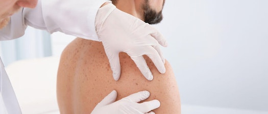 Doctor checking a patient's back Skin Cancer Screenings: How Early Can Skin Cancer Be Detected?