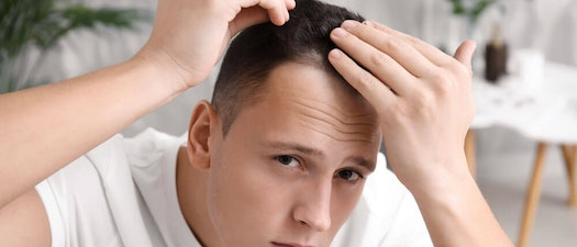 Spotting Scam Hair Loss Products
