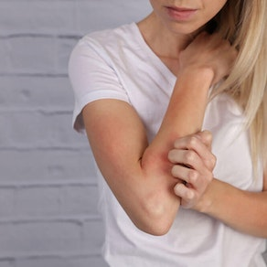 What Your Rash Means and When You Should See a Doctor