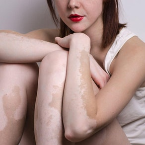 How Light Therapy is Treating Vitiligo