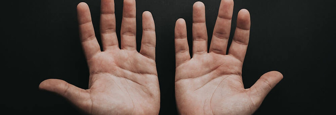 Hands with warts How to Get Rid of Warts