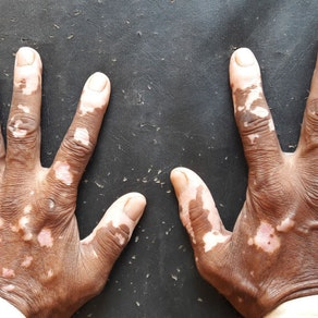 What You Need to Know About Vitiligo