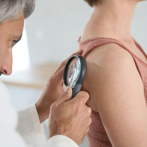Skin Cancer Awareness Month: 3 Reasons Why Early Detection is Critical