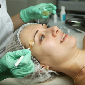 Don't Let the Stress Show This Holiday Season. Enjoy a Chemical Peel and Watch Facial Lines Go Away