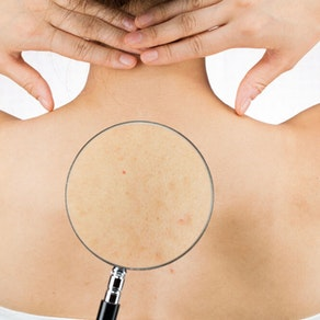 Do You Have Body Acne? These Treatments May Be For You