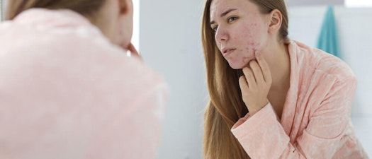 Get in the Clear from Cystic Acne