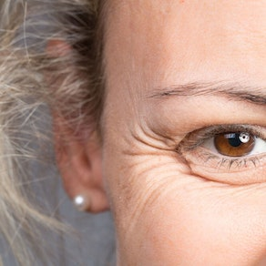 Cosmetic Dermatology: How Long Do The Effects of Dermal Fillers Last?