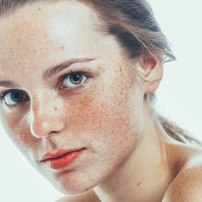 Northeast Dermatology Associates freckled skin treatment Fight Freckles with this Fix