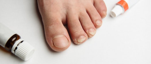 Fungal Infections Are Common. Here Are the Top 3 Treatment Options