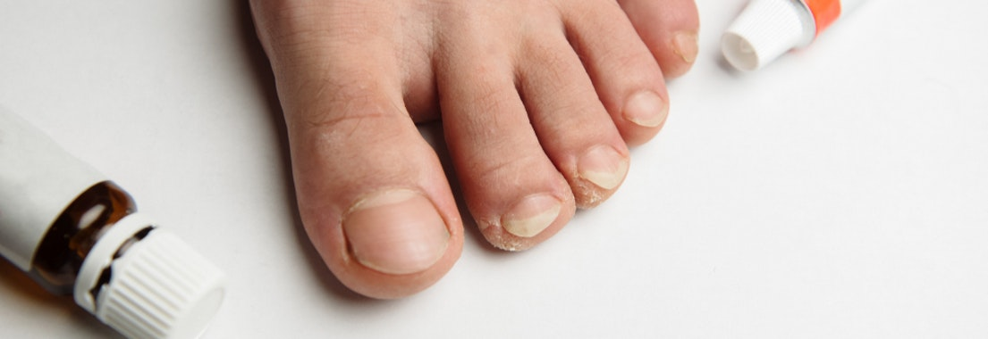 Fungal infection treatment on a foot Fungal Infections Are Common. Here Are the Top 3 Treatment Options