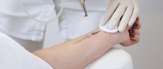 What to Look for in a Laser Tattoo Removal Provider
