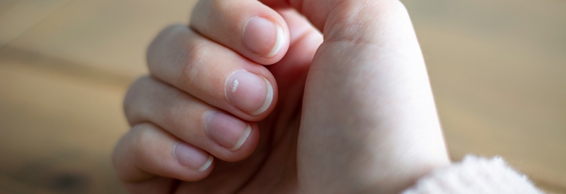 Here's Why You May Be Suffering from Nail Abnormalities