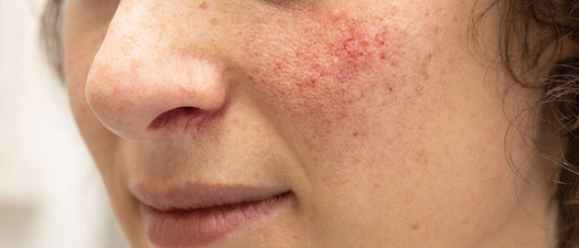 Finding and Treating Rosacea Causes and Symptoms