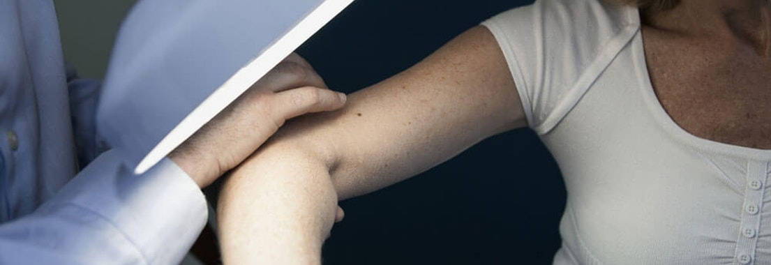 Doctor examining a patient's elbow Skin Cancer Screenings: What to Expect and How They Can Save Your Life