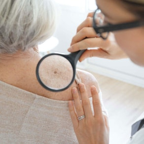 Skin Cancer Awareness Month: Your Treatment Options Explained
