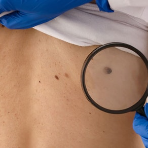 Northeast Dermatology Associates doctor examining spots on back Skin Cancer Awareness Month: Is This Spot Cancerous?