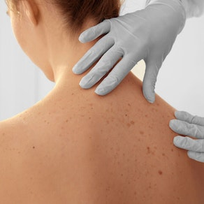 How to Look for the Warning Signs of Squamous Cell Carcinoma