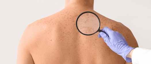Doctor looking at man's mole for skin cancer What Areas of the Body Are Most Prone to Skin Cancer?
