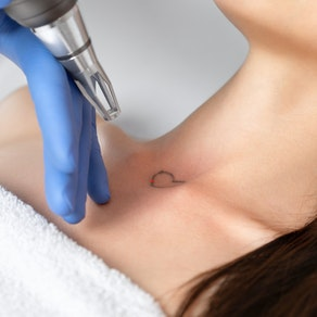 Laser tattoo removal on heart shaped tattoo Remove an Unwanted Tattoo in Time for the Holidays