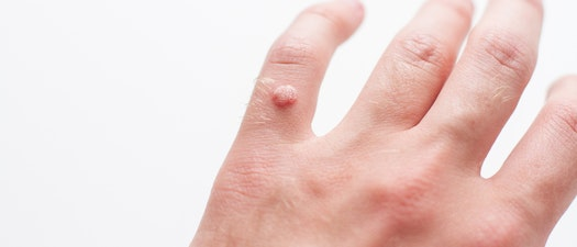 Person with wart on their hand How to Detect a Wart and What to Do About Them