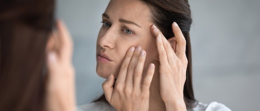 How Stress Affects Pre-Existing Skin Conditions