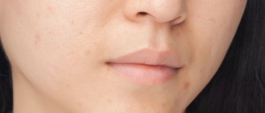 Acne as a Teen? How to Fix Adult Skin
