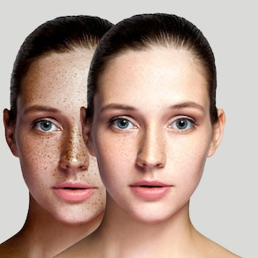 Woman before and after freckle removal Can You Really Get Rid of Freckles?